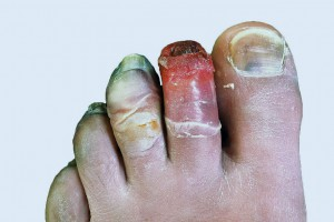 Toes showing effects of frostbite